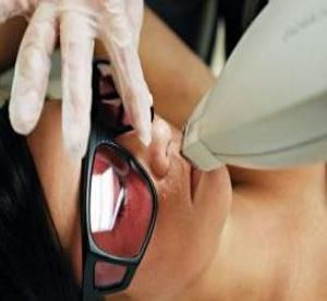 Laserska epilacija gornjih pregleda usana