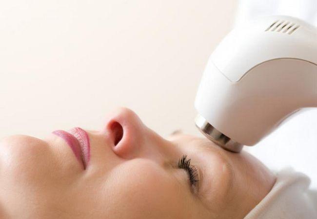 recenzije laserskih epilaata
