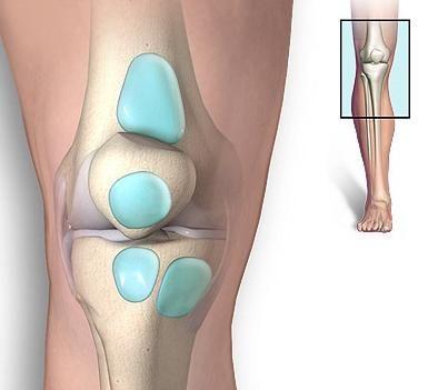 Liječenje bursitisom koljena: vratimo se lagano za hod