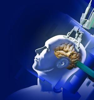 liječenje tumora mozga u Izraelu