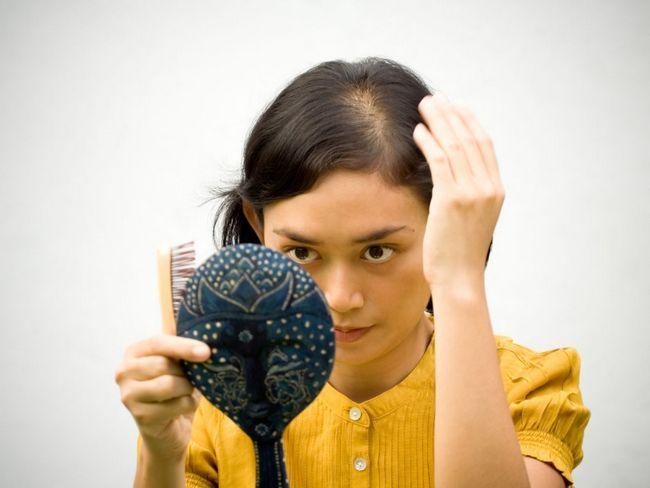 liječenje alopecije kod žena