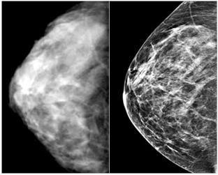 mamografija ili uzi