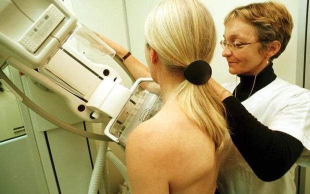 mamograma mliječnih žlijezda