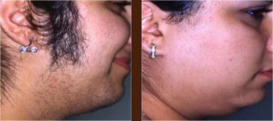 koliko lasersko uklanjanje dlačica procjenjuje