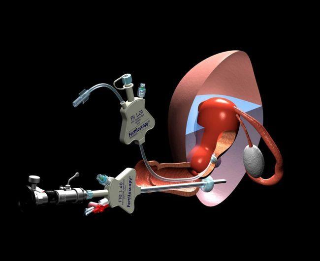 Fertiloskopski aparat