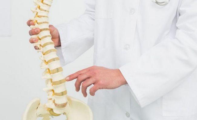 NSAID za osteohondrozu