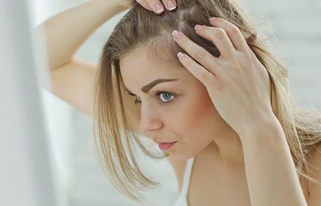 gubitak kose kod žena