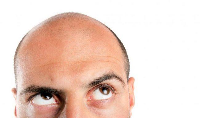 androgena alopecija