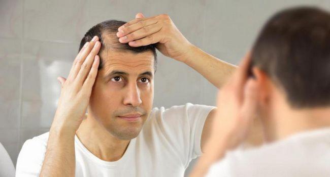 načine za sprečavanje gubitka kose