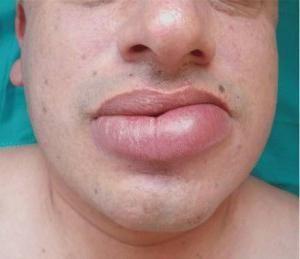 Puffy lip: četiri uzroka slabosti
