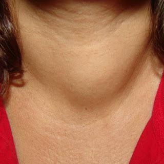 simptomi raka štitnjače