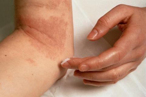 simptoma neurodermitisa i fotografije za liječenje