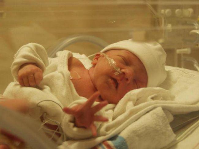 znakovi prijevremenosti prijevremenosti i preraspodjele novorođenčadi
