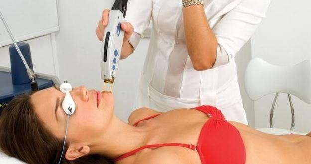 vrste laserskog uklanjanja dlaka