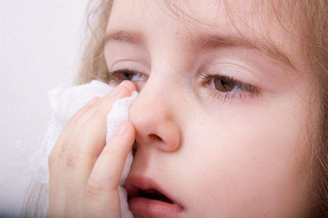 alergijska reakcija kod djeteta