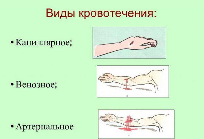 Stezanje prstiju arterija