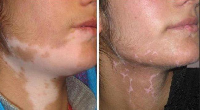 presađivanje kože