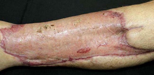 nakon transplantacije kože