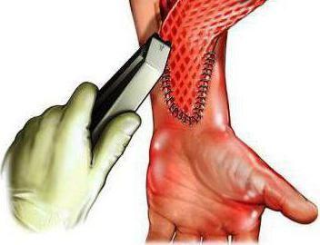 transplantacija kože s opeklinama