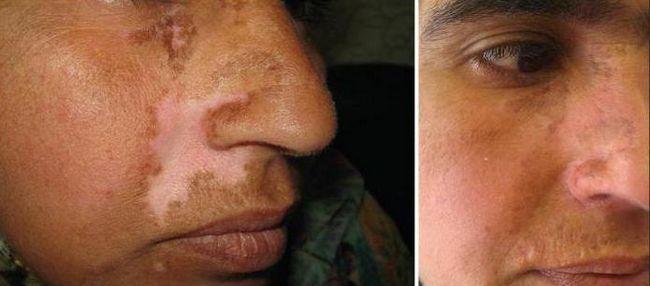 presađivanje kože na licu