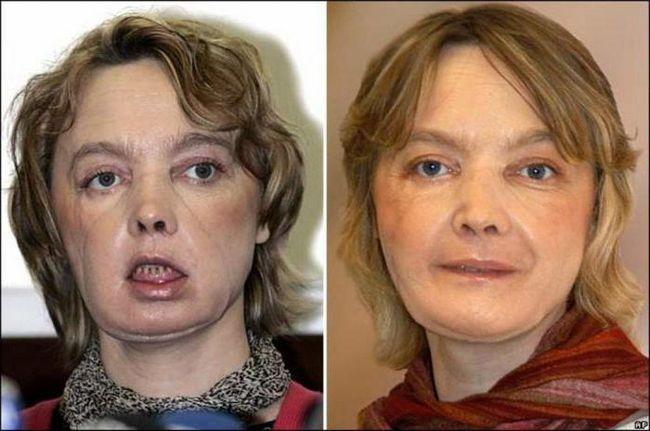 transplantacija lica prije i poslije fotografije