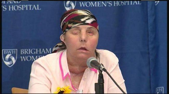 transplantacija lica u Rusiji