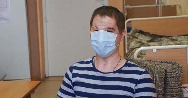 operacija presađivanja lica u Rusiji