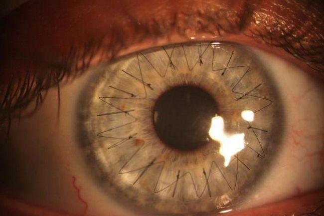 transplantacija rožnice pregleda oka