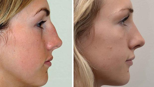plastična operacija na nosu