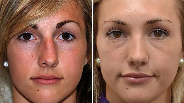 plastična kirurgija na nosnoj fotografiji