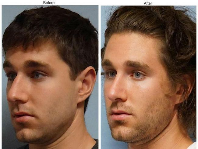 plastična kirurgija na pregledu nosa
