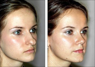 plastična kirurgija vrha nosa