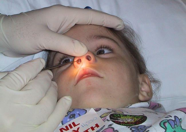 zašto dijete ima krv iz nosa