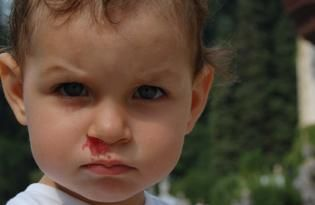dijete je pušilo nos