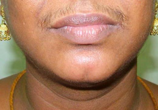 brada u žena