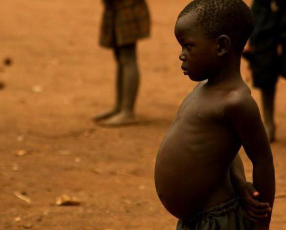 beba ima veliki trbuh od 2 godine