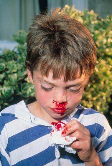 krv iz nosa