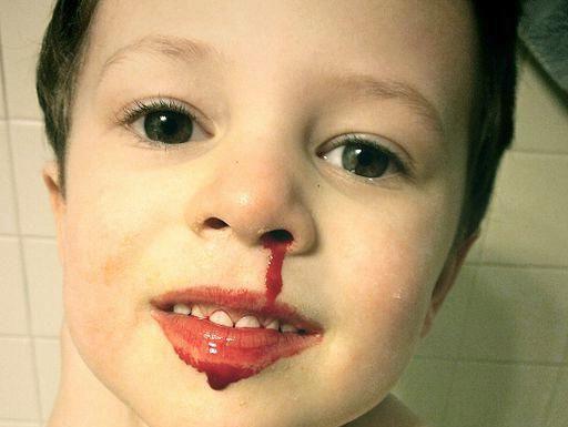 glavobolja krvi iz nosa
