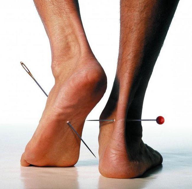 Osjećaj trnce u nogama