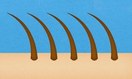 urastajuća kosa u bikinijskom području