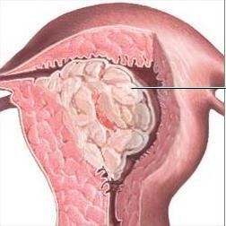 veličine endometrijskih polipa