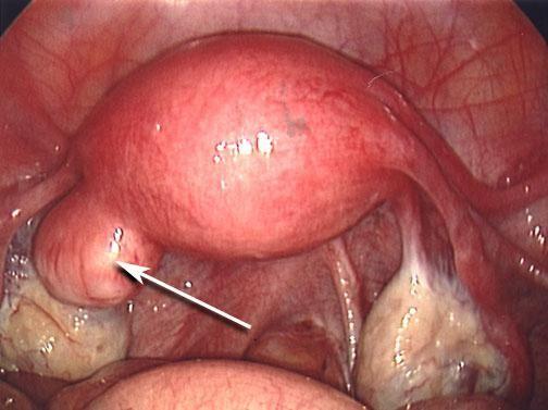 polip endometrijski tretman bez operacije