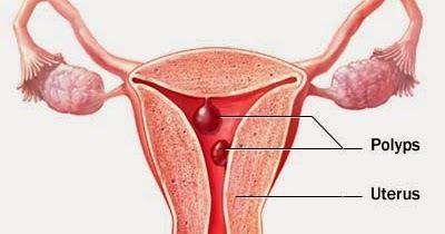 Polipa tijekom trudnoće