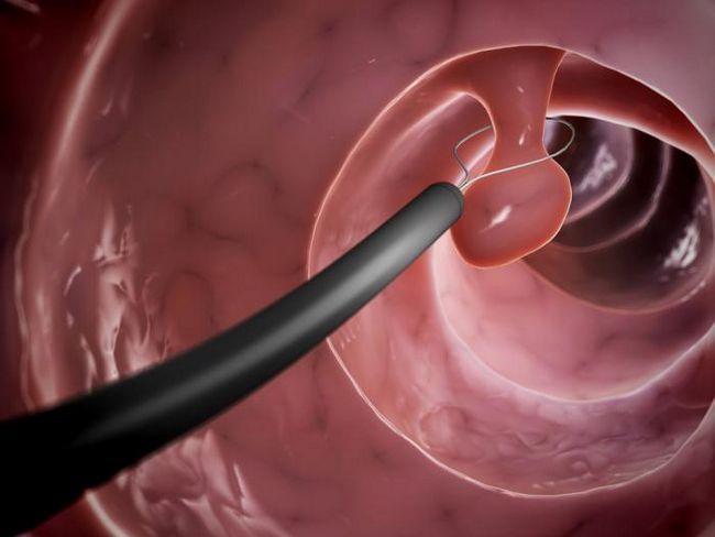 polip kirurgija