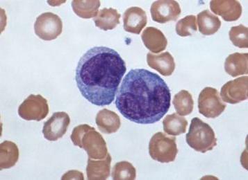 spušteni su leukociti, a monociti su povišeni
