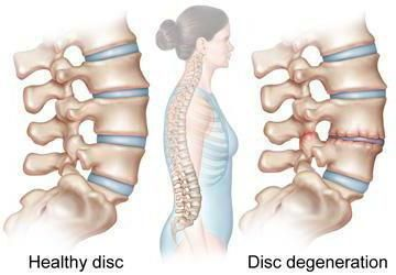 kralježaka i kralježnice
