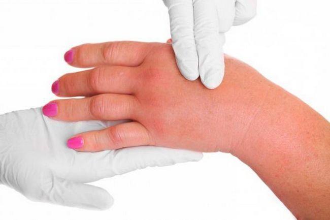 alergijske simptome