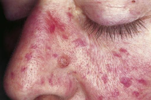 hemoragijskog sindroma