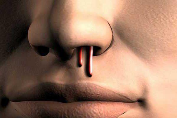 krv iz nosa uzrokuje krvarenje u odraslih osoba