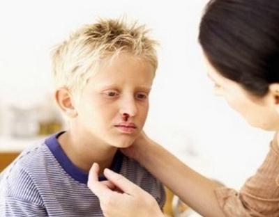 uzroci nazalnih krvarenja kod odraslih osoba